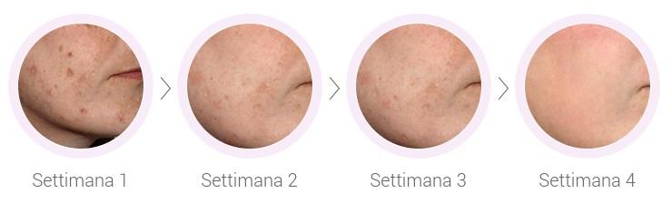 effetti e risultati di cream collagena Italia
