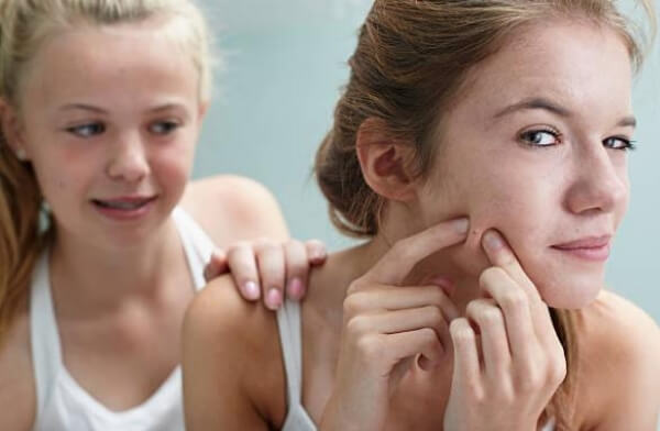 ragazze con l'acne