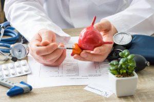 Alimenti che sono buoni e cattivi per la prostata