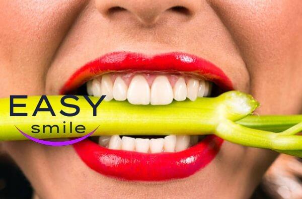 easy smile veneers denti opinioni