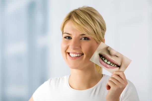 donna, sorriso, denti ora, prima