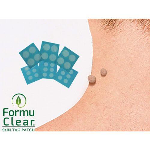Formu Clear Skin Tag Patch prezzo Italia