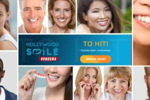 Hollywood Smile Veneers – Recensioni faccette dentali per un sorriso perfetto. Opinioni sui forum online e prezzo in Italia
