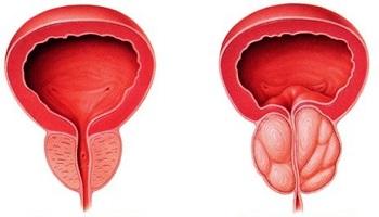 prostata normal ingrosata