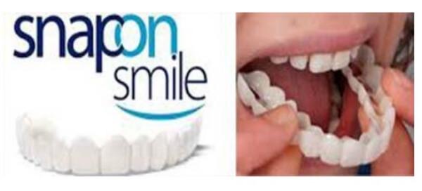 Che cos'è SnapOn Smile?