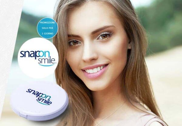 Snap-On Smile: prezzo Italia